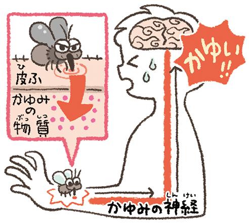 皮膚にかゆみの物質が入ると、その情報が神経を通って脳に伝わり、脳がかゆいと感じる