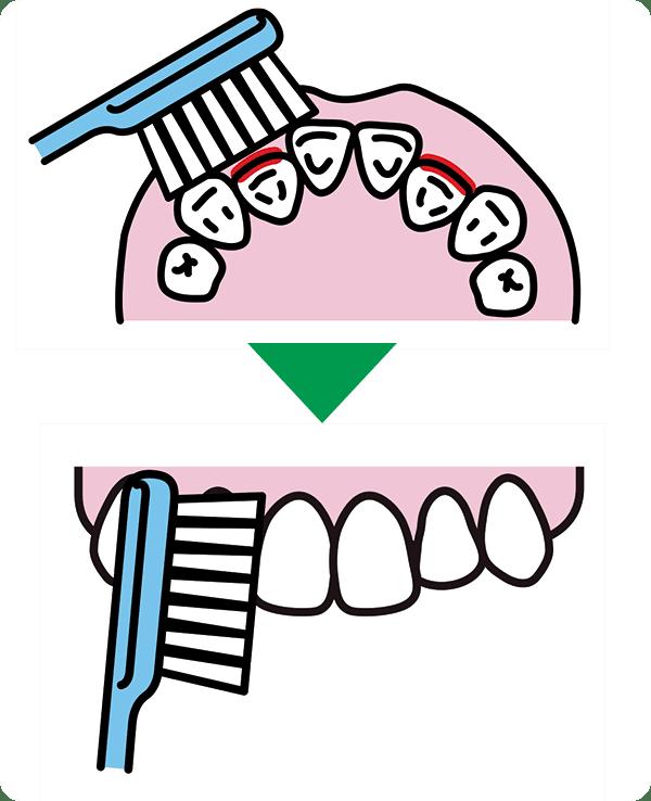 デコボコした歯並び