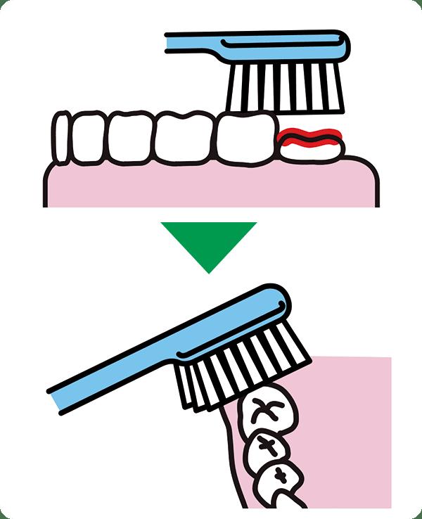 背の低い歯